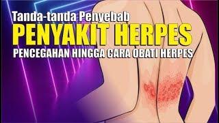 Apa Itu Herpes Zoster ? Ketahui Info Lengkapnya - dr. Deta Yuliani Oka.