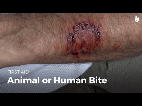 First aid: animal or human bite