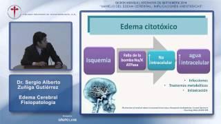 Periorbitario edema que es