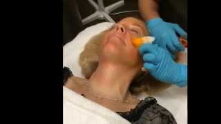 chemical peel demo tca orange peel for anti aging at the gallery of cosmetic surgery