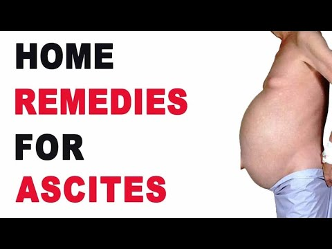 Natural Remedies for Ascites!