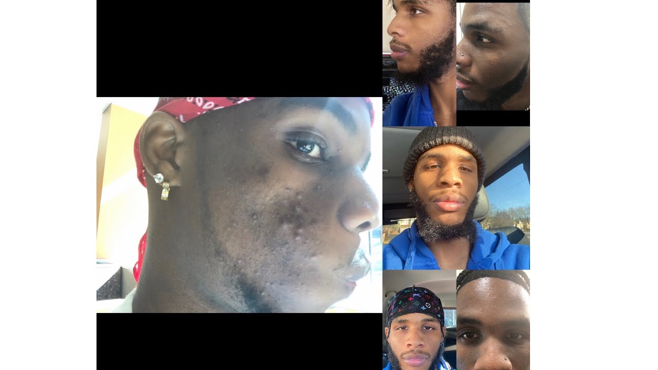 HOW I CLEARED MY ACNE AND HYPERPIGMENTATION!!! (UNBELIEVABLE)