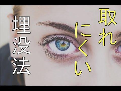 【二重整形】取れにくい埋没法【閲覧注意】【手術動画】グランドパーフェクト法 Double Eyelid Surgery