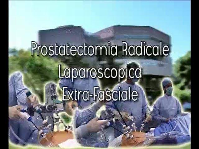 Laparoscopic surgery - Prostatectomia radicale laparoscopica extra fasciale