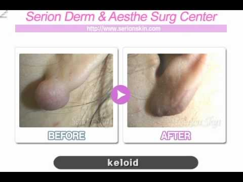 How to cure keloid scar preventing recurrence