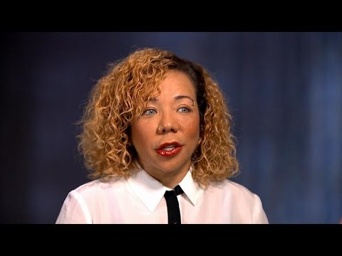 Tiny Harris Undergoes Controversial Eye Color Changing Surgery Youtube