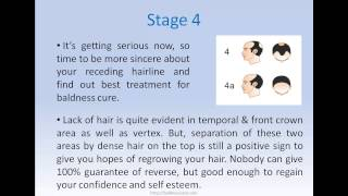 Male Baldness Cure - Treatments For Various Stages Using Norwood Scale
