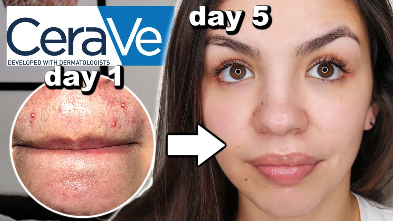 I Used Cerave Skincare For One Week Youtube