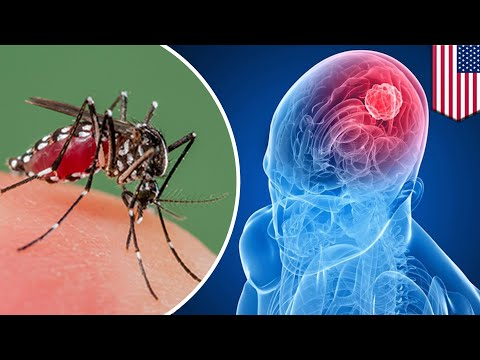 Brain cancer: Zika virus may be the key to treating deadly Glioblastoma brain cancer - TomoNews