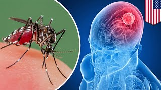 Brain cancer  Zika virus may be the key to treating deadly Glioblastoma brain cancer   TomoNews