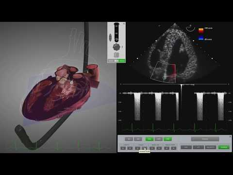 HeartWorks Aortic Stenosis