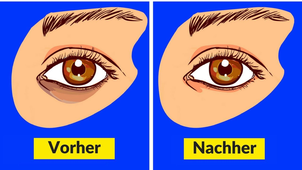 6 Einfache Hausmittel Gegen Augenringe
