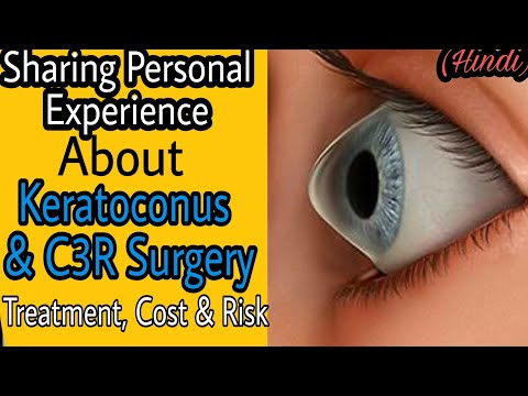 Keratoconus Treatment & Cost | C3R Surgery (Corneal Collagen Cross-linking) | What Is Keratoconus ?