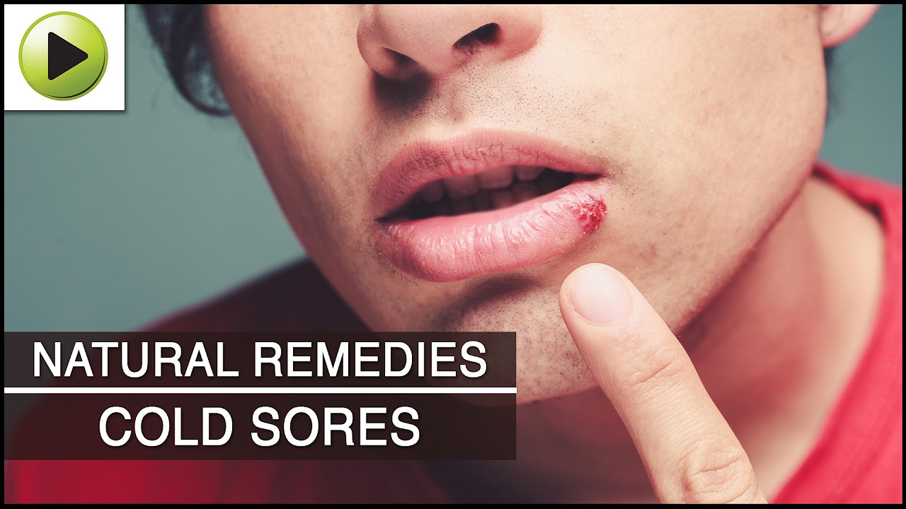 Skin Care  Cold Sores  Natural Ayurvedic Home Remedies