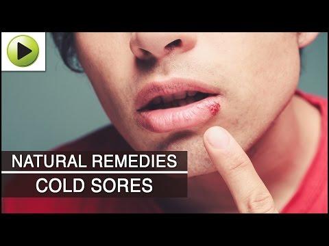 Skin Care - Cold Sores - Natural Ayurvedic Home Remedies