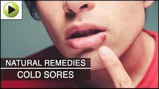 Skin Care - Cold Sores - Natural Ayurvedic Home Remedies(Don't forget to check out our brand new website - http://bit.ly/hmvdesc Cold sores also referred to as fever blisters are small and painful fluid-filled blisters and ..., 2012-07-20T06:43:14.000Z)