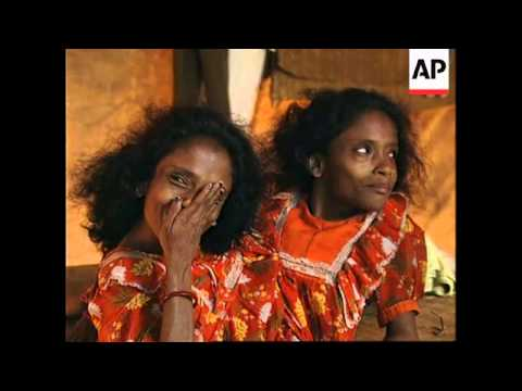 INDIA: SIAMESE TWINS ARE A PROFIT MAKING ENTERPRISE