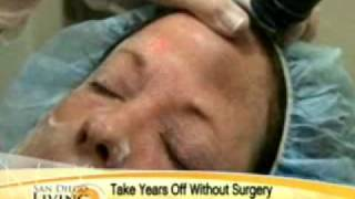 CO2 Laser Resurfacing  - San Diego  ActiveFX Thumbnail