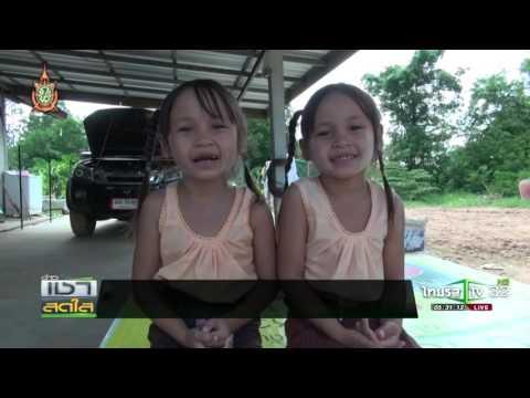 ขอนแก่น เด็กแฝดกตัญญู | 12-07-59 | เช้าข่าวชัดโซเชียล | ThairathTV