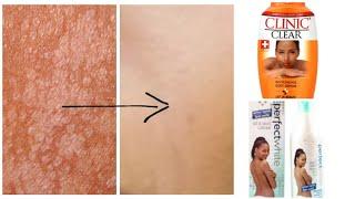 Comment enlever les tâches blanches sur la peau causé par les produits trop fort .