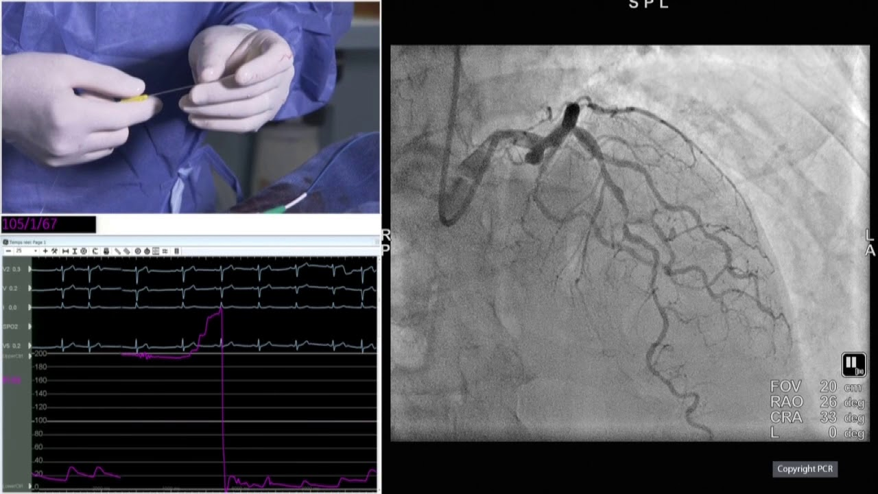 Download Transradial approach and complex PCI