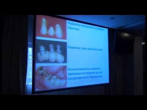 Бруксизм, как фактор риска №1 для стоматологического лечения. Бояться или управлять.