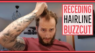 Receding hairline buzz cut - Shaving to a grade 2