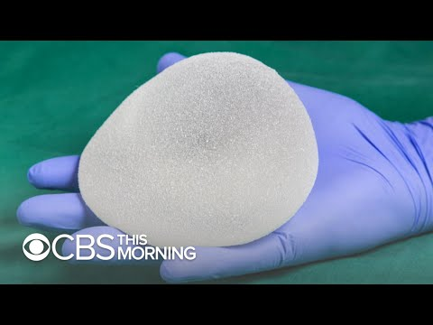 Textured breast implant recipient on cancer diagnosis: It was