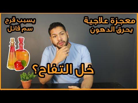 خل التفاح هل معجزة علاجية ومفيد ام يسبب قرح المعدة وسم قاتل دكتور كريم رضوان