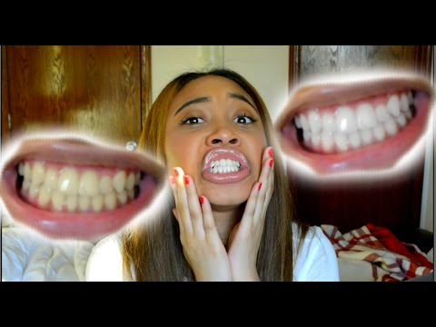 How To Whiten Teeth in 5 Minutes! (Works 100%)