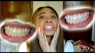 One of ItsHeyMorgan's most viewed videos: How To Whiten Teeth in 5 Minutes! (Works 100%)
