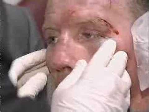 Micky Ward's Boxing Recovery. Micky Ward Vs Arturo Gatti