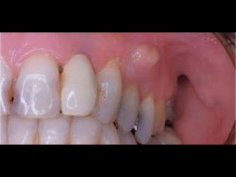 علاج خراج الأسنان بالبيت Youtube