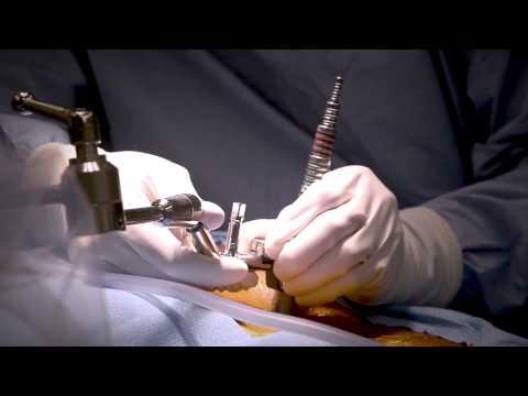 minimally-invasive-laminectomy-surgery-to-treat-lumbar-stenosis---medstar-southern-maryland