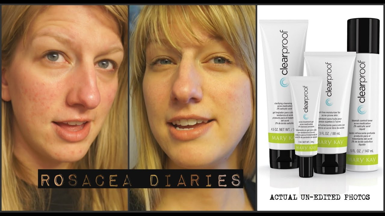 tips mot rosacea