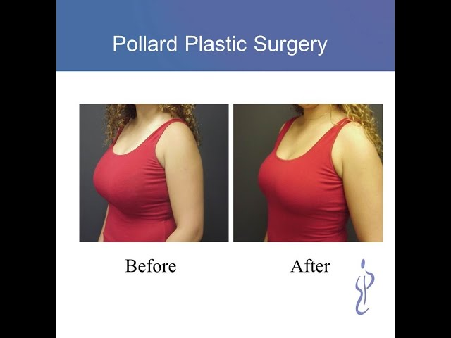 Breast Lift before and afters