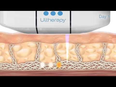 Ultherapy – Tone and tighten facial skin   Medical Spa Club