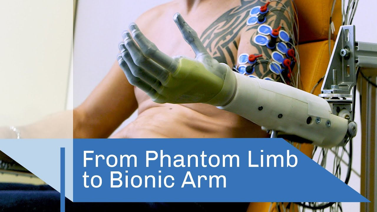 From Phantom Limb to Bionic Arm | CNRS in English