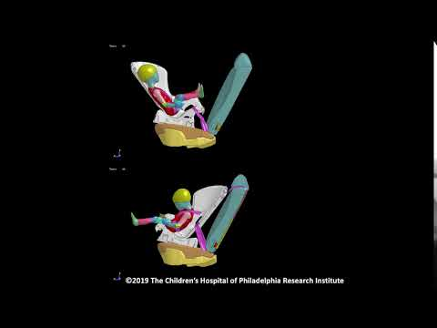 Simulation Of A 18-month-old Child In A Rear-facing Versus Forward-facing Child Safety Seat