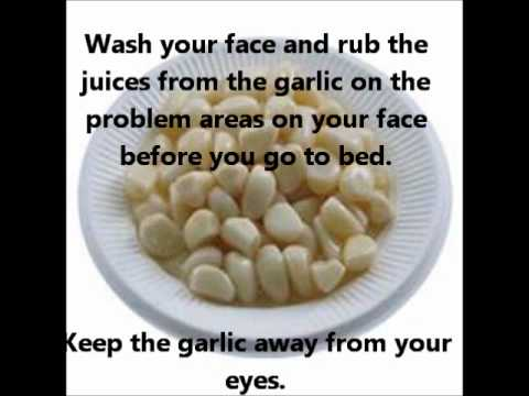 How to apply garlic on face for acne