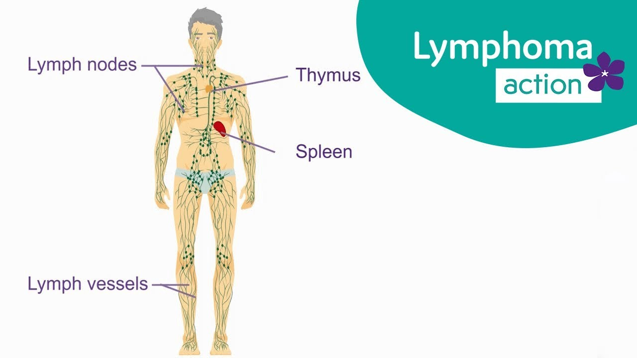 Image result for cancer lymphoma informative images