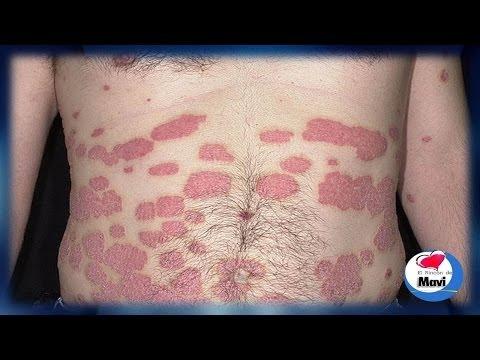 ¿Que es la psoriasis? - Sintomas - Remedios caseros para la psoriasis