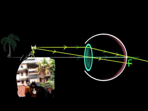 Human eye: accommodation and near point (Hindi) | Human eye | Physics | Khan Academy