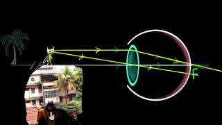 Human eye: accommodation and near point (Hindi) | Human eye | Physics | Khan Academy