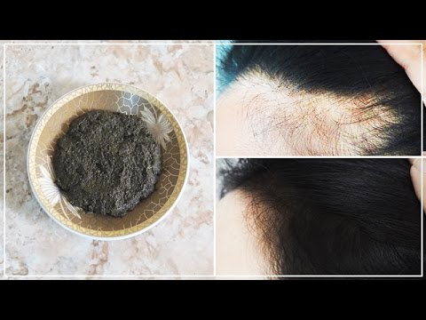 إنبات الفراغات وعلاج الصلع ضعيها على شعرك والفراغات 10 دقائق يوميا والنتيجة شعر قوي و كثيف كالباروكة