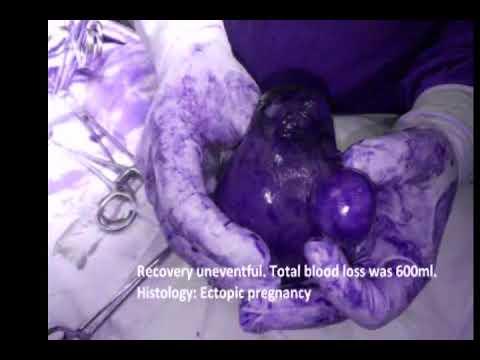Cornual Ectopic Pregnancy , Open Surgical Management  Options