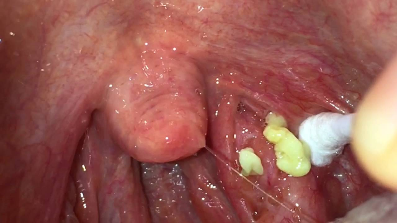 my largest tonsil stone removal youtube