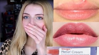 One of Nicole Bickel's most viewed videos: How To Get Rid Of Spots Around Your LIPS