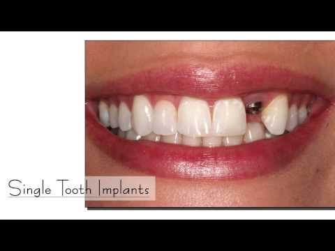 Dental Implant Center Chennai | Teeth Implants Procedure India | Dental Implant Dentist Tamil Nadu