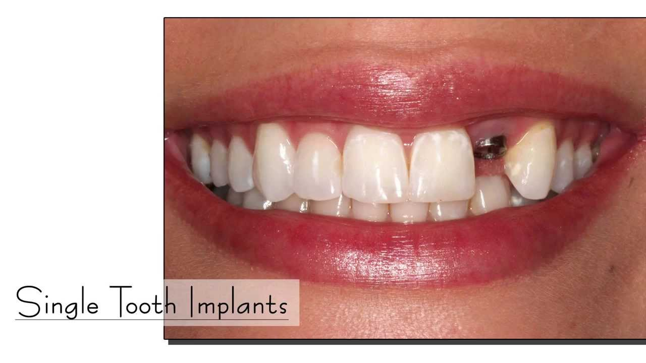 Dental Implant Center Chennai Teeth Implants Procedure